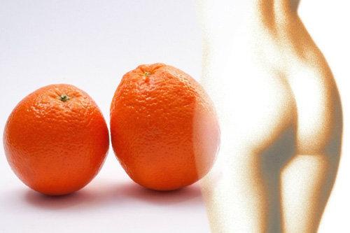 Как ухаживать за кожей при потере веса. Борьба с целлюлитом