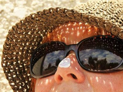 Лучше предотвратить солнечные ожоги